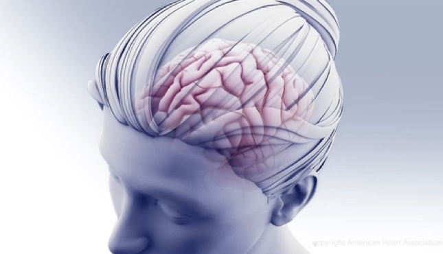 woman's head that is slightly transparent revealing brain for National Stroke Awareness month